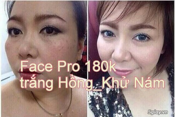 {SÁP ONG HOUSE'S}Body kích Sapong white,Face Pro 5 ngày trắng,Face Kích Teen,Face Mụn - 14
