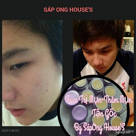 {SÁP ONG HOUSE'S}Body kích Sapong white,Face Pro 5 ngày trắng,Face Kích Teen,Face Mụn - 44