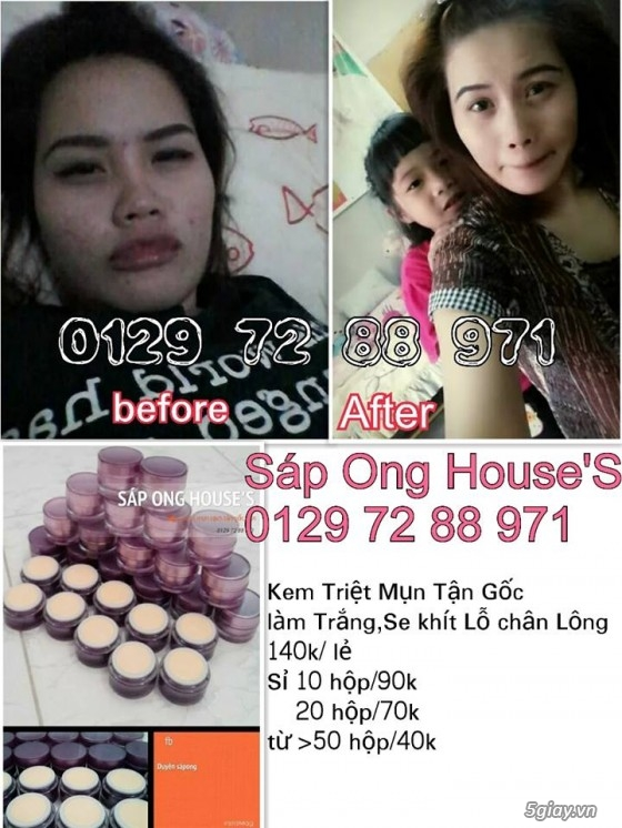 {SÁP ONG HOUSE'S}Body kích Sapong white,Face Pro 5 ngày trắng,Face Kích Teen,Face Mụn - 26