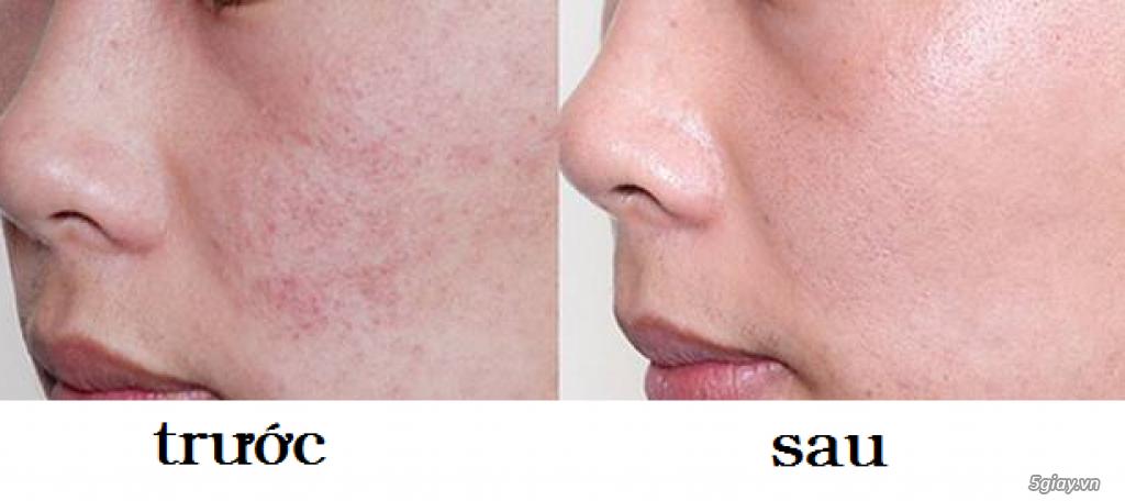 Căng da mặt bằng chỉ Collagen giá bao nhiêu/ Căng da mặt bằng chỉ collagen/ Căng da mặt bằng chỉ - 25