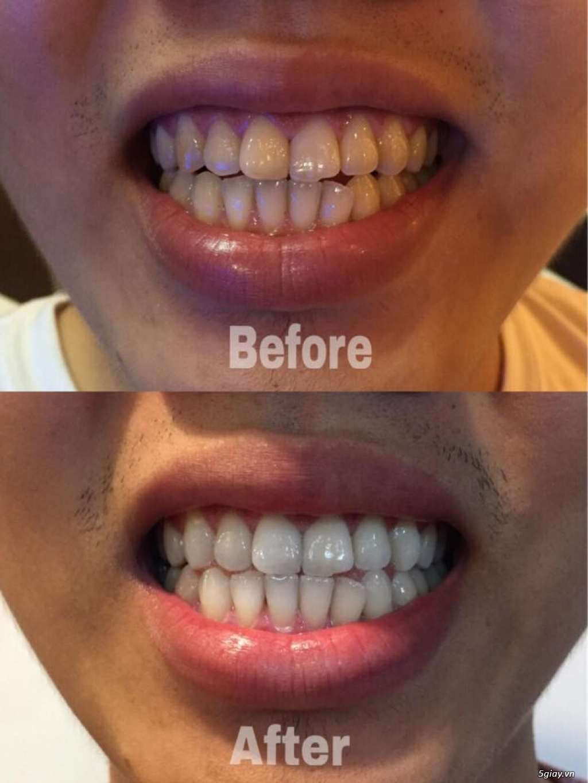 CREST Miếng dán trắng răng Supreme Professional - USA - 3