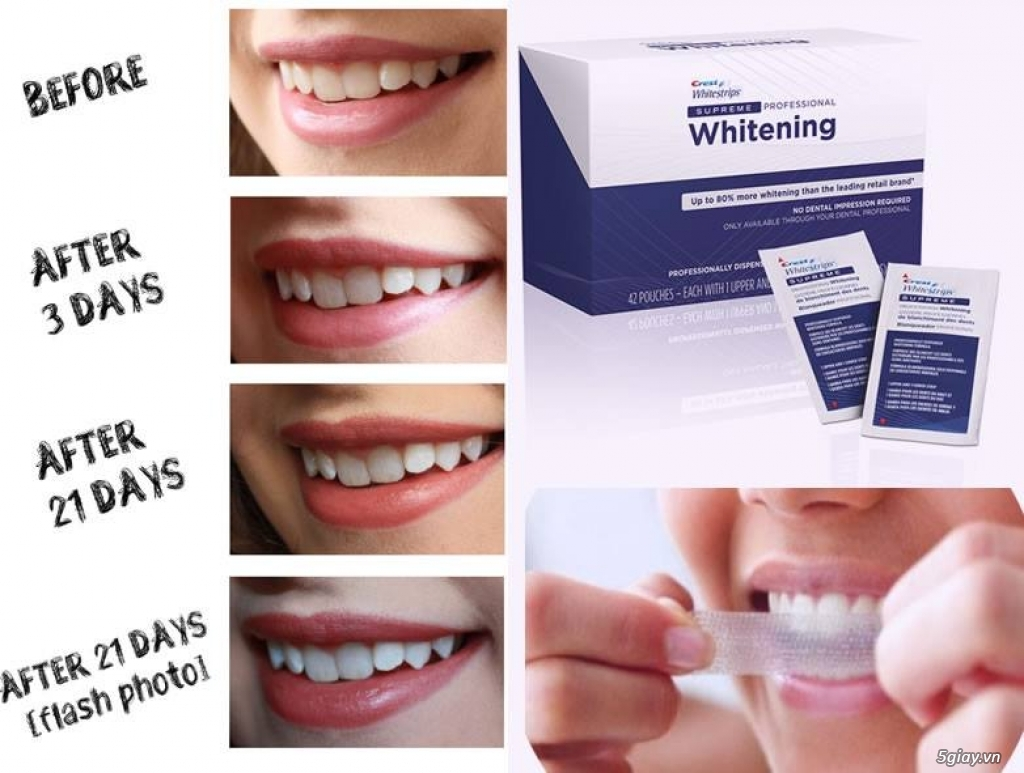 CREST Miếng dán trắng răng Supreme Professional - USA