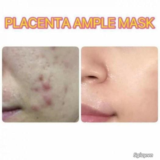 Mặt nạ nhau thai cừu Placenta Ample Mask- Mat na nhau thai cuu - 2