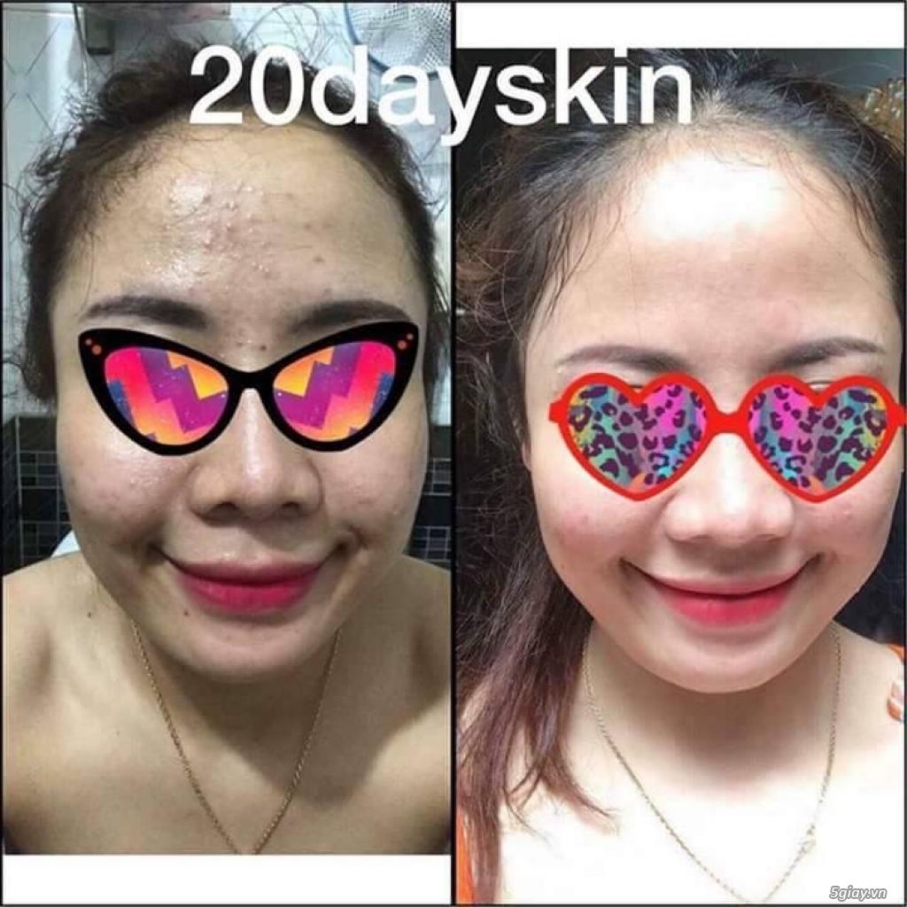 Thực phẩm bổ sung vitamin 20dayskin,bí quyết để có làm da không tuổi. - 1