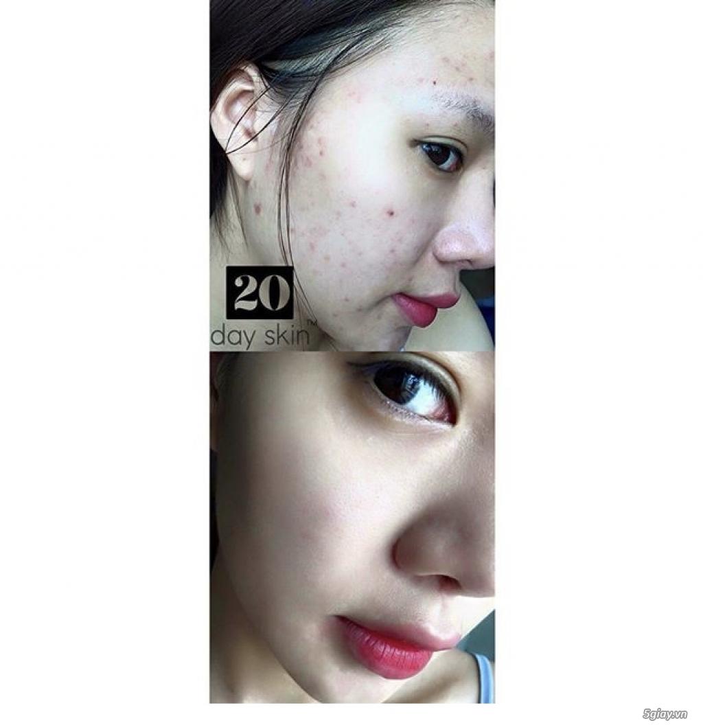 Thực phẩm bổ sung vitamin 20dayskin,bí quyết để có làm da không tuổi. - 3