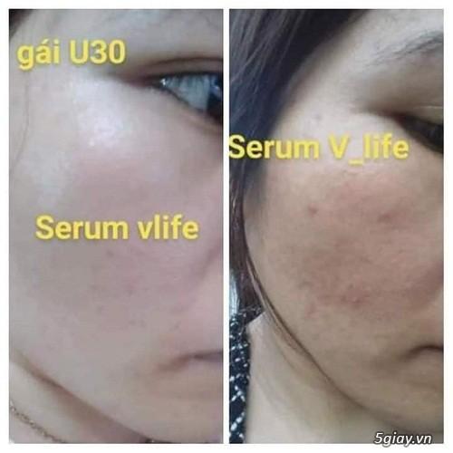 Serum dưỡng da Ha plus - 1