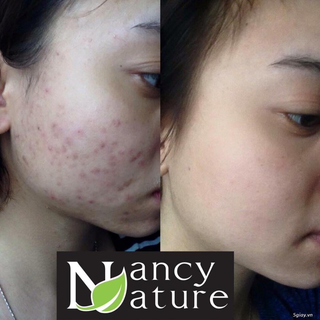 Serum NANCY CARE trị dứt điểm mọi loại mụn và nuôi dưỡng da trắng hồng - 4