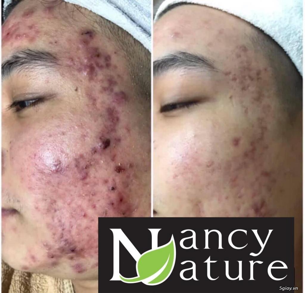 Serum Nancy care với 100% tinh chất thiên nhiên giúp trị mụn an toàn - 2