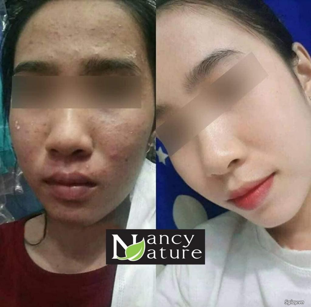 Sạch mụn tuyệt đối chỉ sau 2 tuần với serum trị mụn Nancy - 1