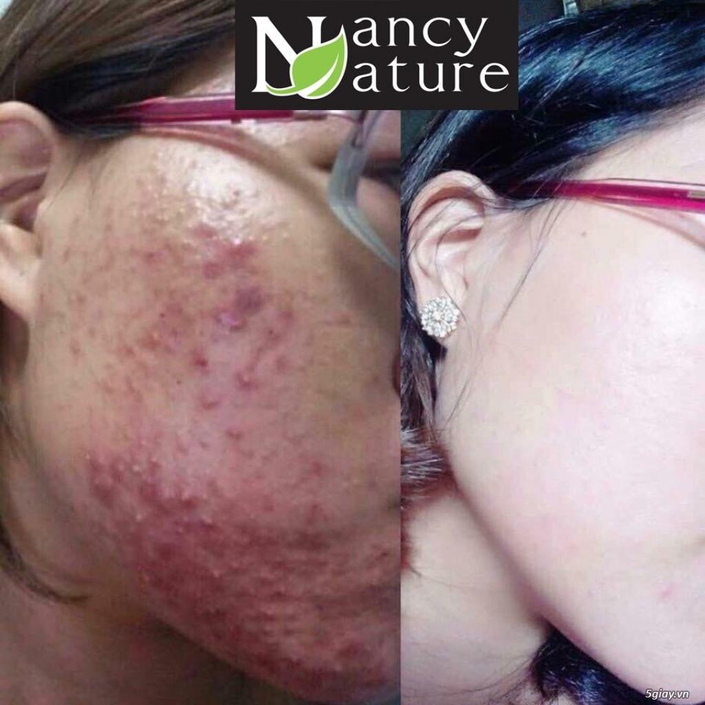 Serum Nancy care với 100% tinh chất thiên nhiên giúp trị mụn an toàn - 1