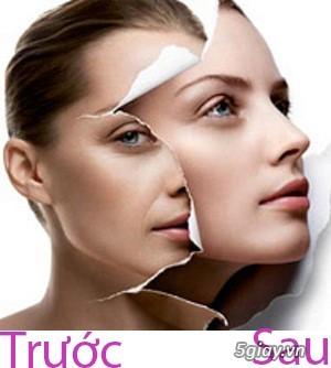 Căng da mặt bằng chỉ Collagen giá bao nhiêu/ Căng da mặt bằng chỉ collagen/ Căng da mặt bằng chỉ - 12