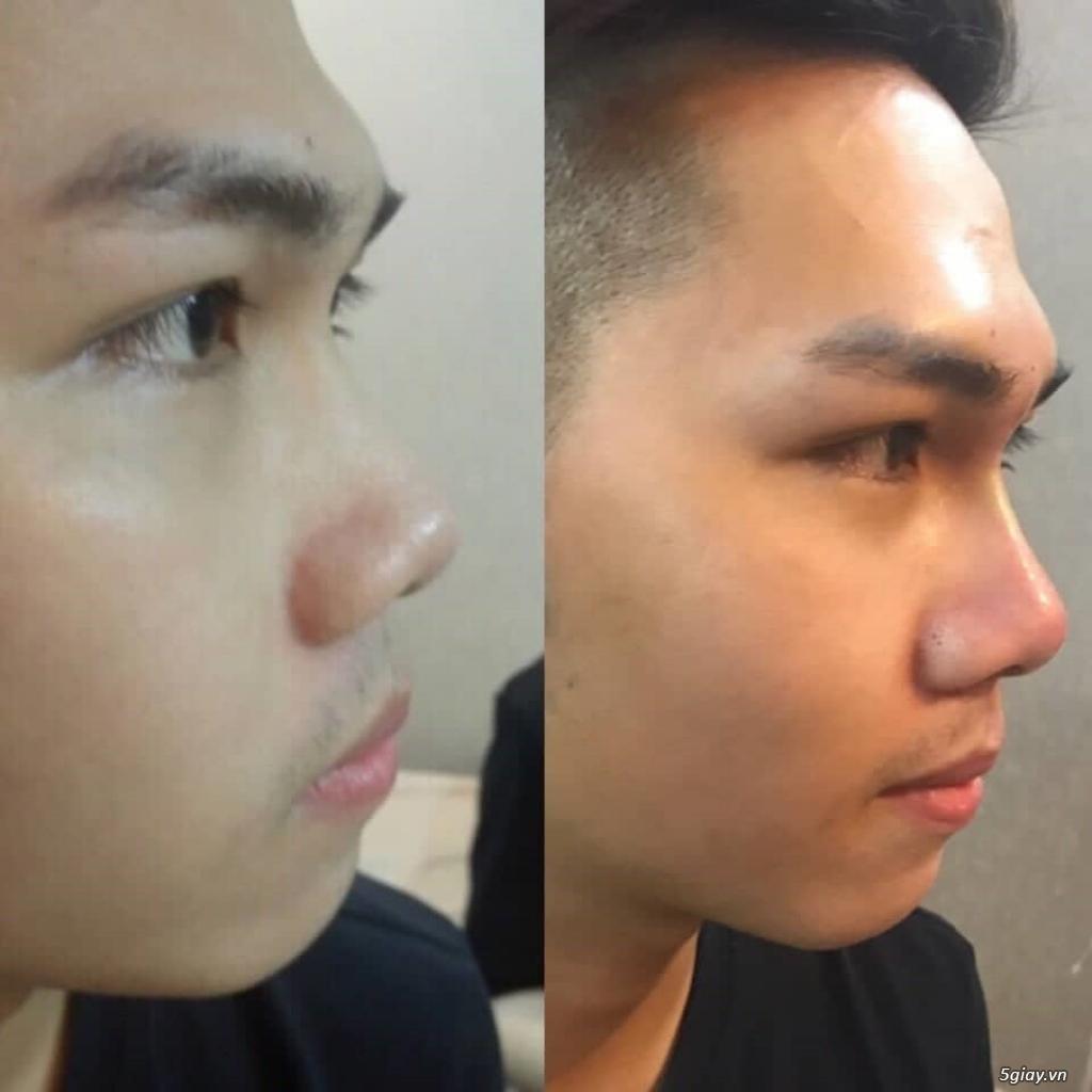 Căng da mặt bằng chỉ Collagen giá bao nhiêu/ Căng da mặt bằng chỉ collagen/ Căng da mặt bằng chỉ - 7