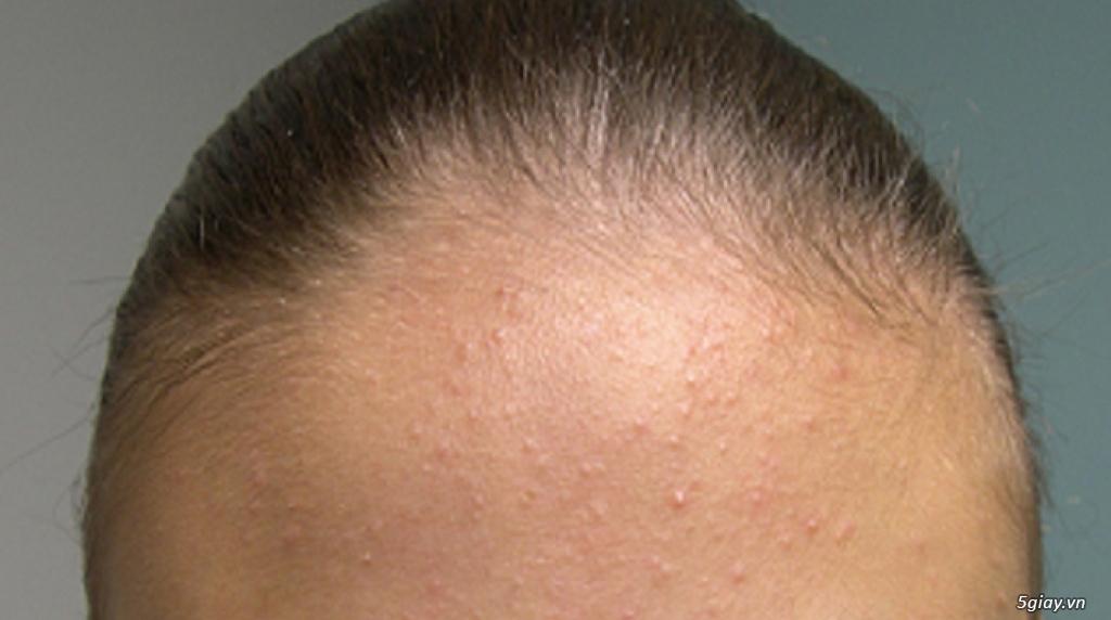 Căng da mặt bằng chỉ Collagen giá bao nhiêu/ Căng da mặt bằng chỉ collagen/ Căng da mặt bằng chỉ - 24