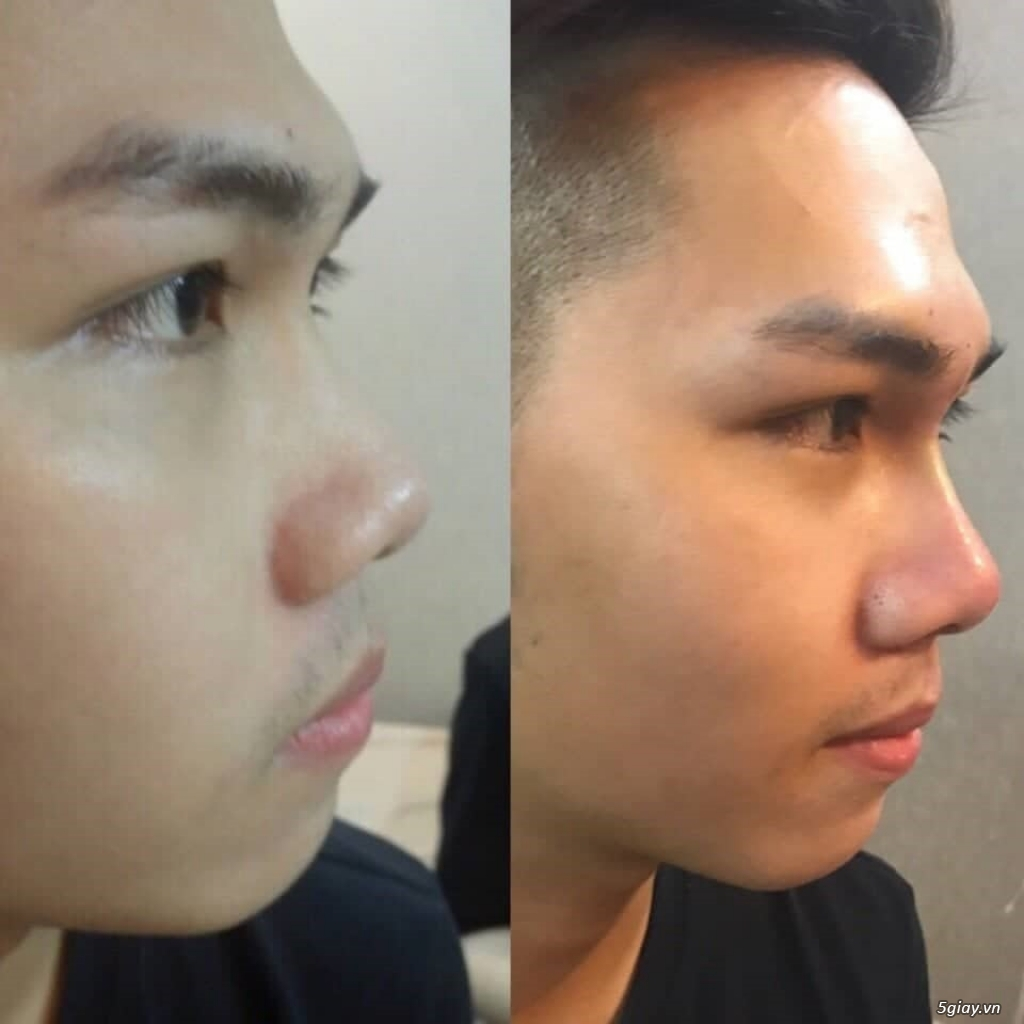 Căng da mặt bằng chỉ Collagen giá bao nhiêu/ Căng da mặt bằng chỉ collagen/ Căng da mặt bằng chỉ - 5