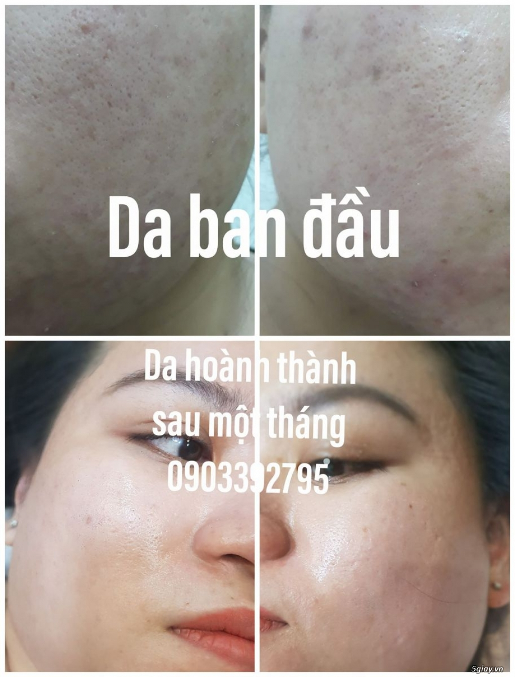 Căng da mặt bằng chỉ Collagen giá bao nhiêu/ Căng da mặt bằng chỉ collagen/ Căng da mặt bằng chỉ - 23