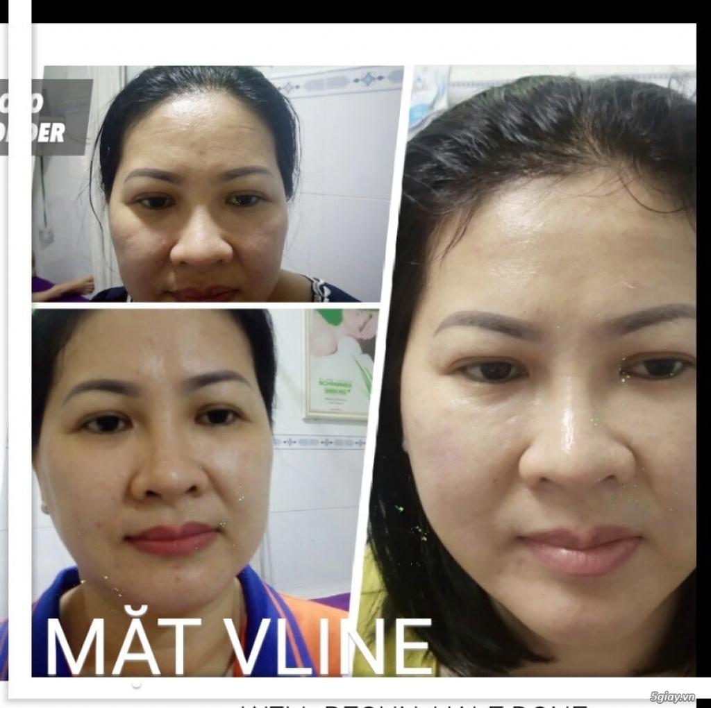 Căng da mặt bằng chỉ Collagen giá bao nhiêu/ Căng da mặt bằng chỉ collagen/ Căng da mặt bằng chỉ - 2